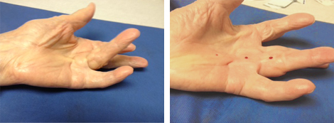 Hand and Upper Extremity Disorders | Dupuytren's ...